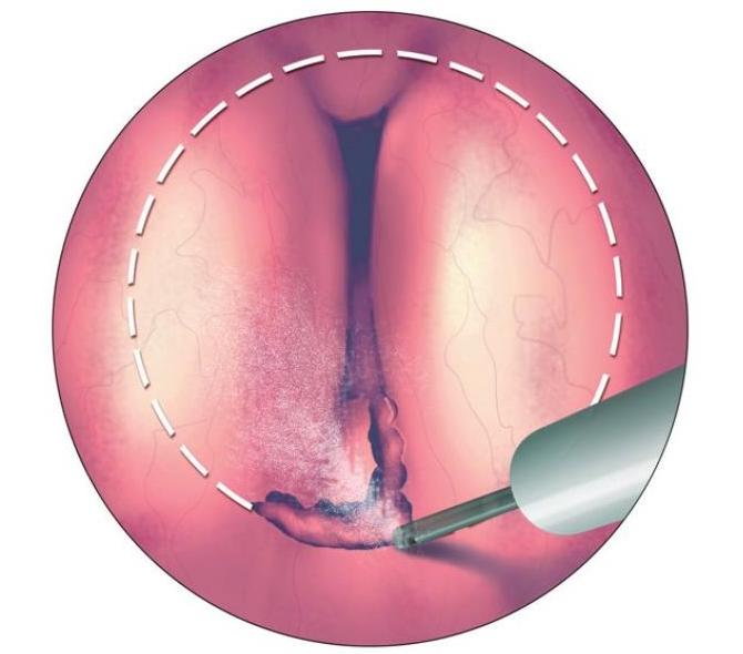операция HoLEP при аденоме простаты